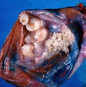 pilonidal cyst teeth teratoma cat