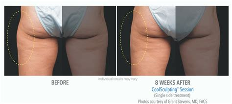 weight loss spa chicago how coolsculpting chicago skinsational med spa