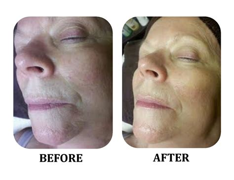 Before Or After by Pics For Gt Milia Removal Before And After