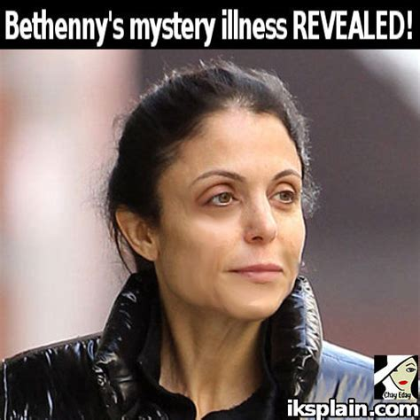 Revealed Poshs Secret Surgery by Real Of New York Bethenny Frankel Mystery