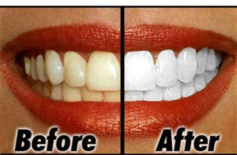 Obat Cara Memutihkan Mata Yang Kuning 11 cara memutihkan gigi dengan cepat secara alami bolasz