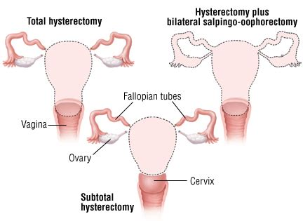 No Period 3 Months After Section by No Period 3 Months After Section Placenta Praevia Oft