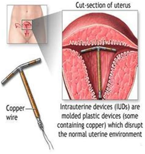 Copper Iud Detox by 1000 Images About Self On Home Remedies
