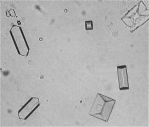 Sedimenti Nelle Urine by Appunti Di Biochimica Clinica
