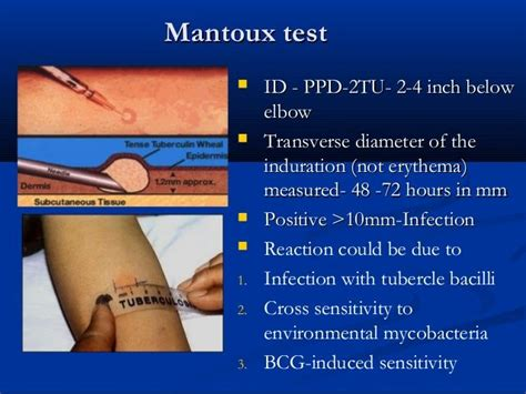 test mantoux best 25 mantoux test ideas on you tb