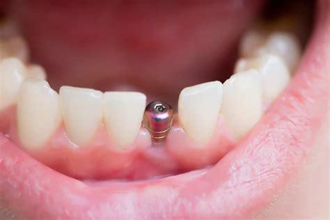 titanium teeth are titanium dental implants dangerous assure a smile
