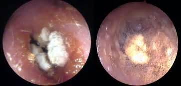 otitis externa dr carbonell otorrinolaringolog 237 a