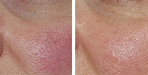 treatment of redness and rosacea laser metz