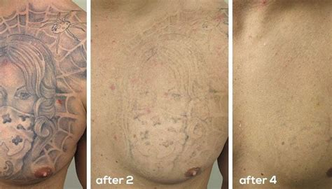 how many sessions of laser tattoo removal laserase skin clinic vancouver laser removal