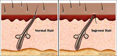 best way to draw out an ingrown hair bottle to draw out in grown hair what causes ingrown hair