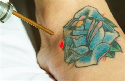 laser tattoo removal questions and answers st pete tattoo removal florida laser tattoo removal