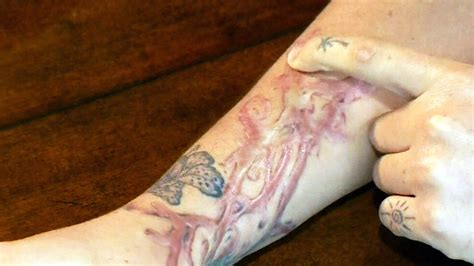 scar from tattoo removal montreal claims removal treatment resulted in