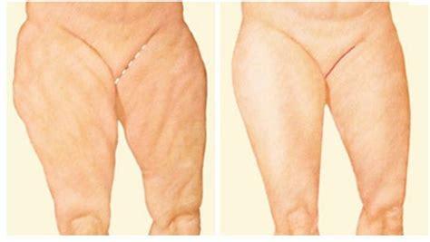 liposuzione interno coscia lifting delle cosce messina