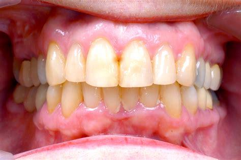 Tanden Polijsten Ortho by Invisalign Onzichtbare Beugel Roelofs Orthodontistenpraktijk
