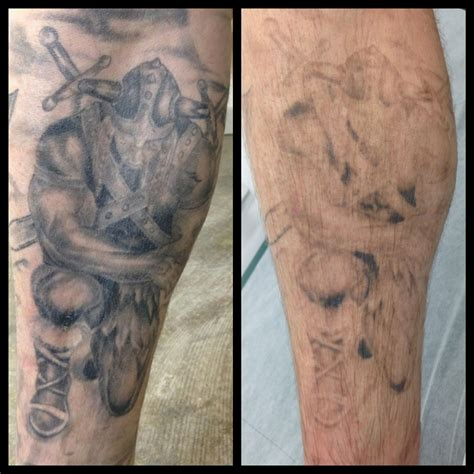 laser tattoo removal for cover up after just 2x treatments laser removal removal