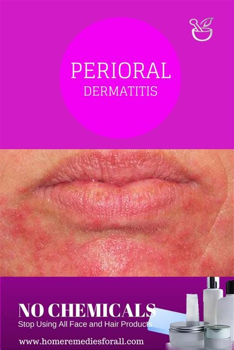 home remedies for perioral dermatitis home remedies