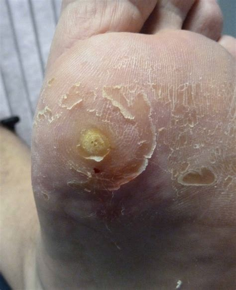 Removed Planters Wart by Warts Treatment