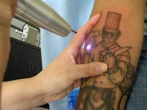 video tattoo removal laser removal second session