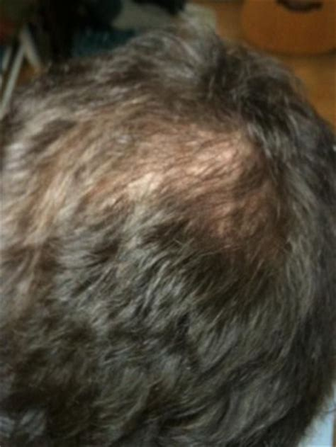 20 month old hair thinning on top 20 month old hair thinning on top 20 month hair thinning