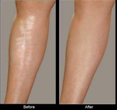 permanent makeup scar camouflage permanent cosmetics scar