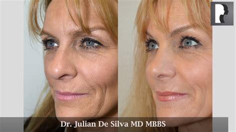 Nose Maxy 1804 rhinoplasty review testimonial by dr julian de silva