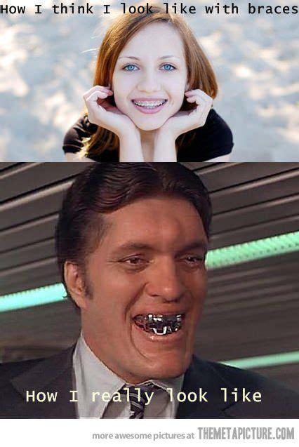 Brace Face Meme - 164 best images about brace face on pinterest mouths
