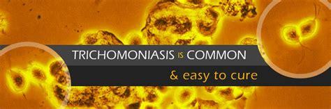trichomoniasis std information from cdc