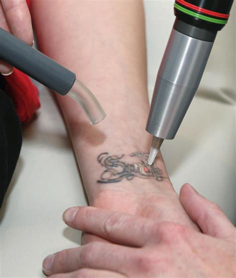 how laser tattoo removal works laser removal hypnotic motion shows