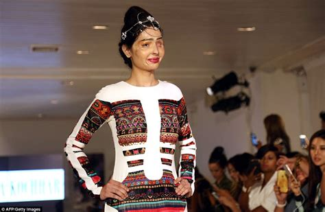 India Bans Fashion Tv Again by India Acid Attack Survivor Reshma Quereshi Redefines
