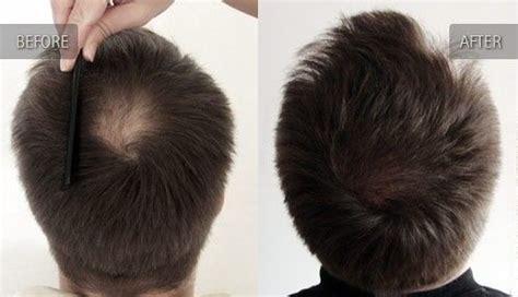 bandage hair shaped pattern baldness using generic propecia finasteride to treat male pattern
