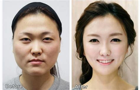 korian si鑒e social sud corea la chirurgia estetica cambia i connotati caos
