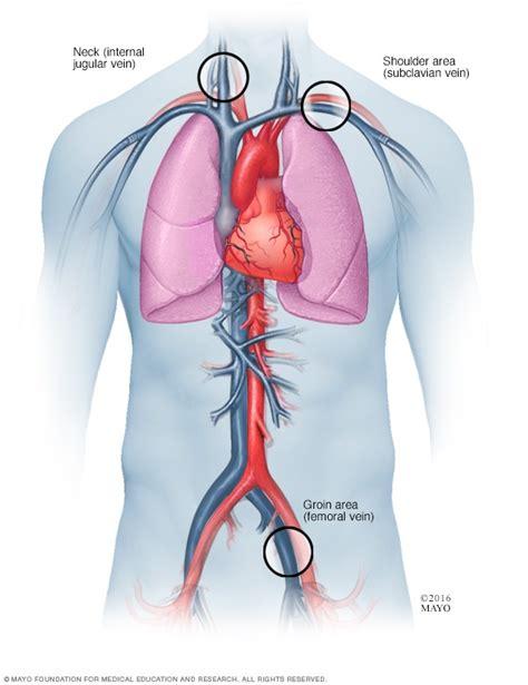 afib ablation side effects atrial fibrillation ablation mayo clinic