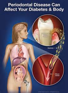 Diabetes amp oral health dentist appleton wi dental education