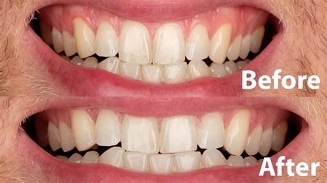 crest 3d whitestrips with light review the best teeth whitening for 2018 reviews com