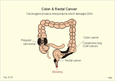 Colon Cancer Without Blood In Stool by Colon Cancer