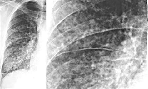 pattern erg interpretation alveolar radiographic lung patterns 171 free knitting patterns