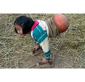 Chinese Girl Has Basketball For A Body