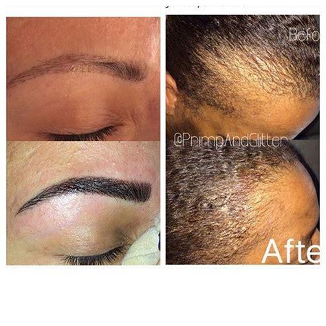 bald spot from haircut fix fix a bald spot after a bad haircut fix a bald spot after