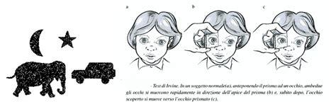 ambliopia test occhio pigro