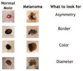 differences between malignant melanoma and a normal mole 176 best skin moles images on pinterest skin moles