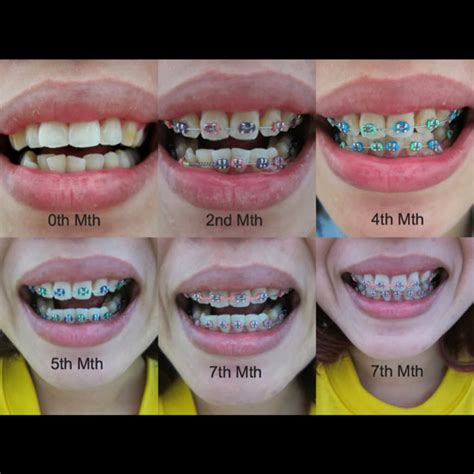 braces colors that make teeth look whiter mhbracesjourney musingsofmei dayre