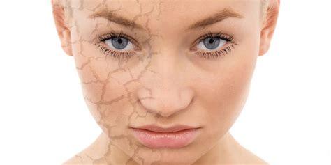 pelle secca alimentazione pelle secca viso rimedi e creme idratanti