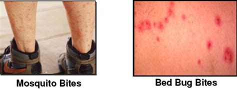 bed bug vs mosquito bed bug bite marks body pictures treatment free brochure