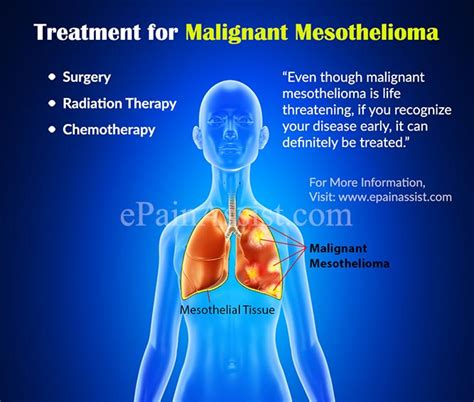 treatment for malignant mesothelioma surgery radiation chemotherapy clinical trial coping home