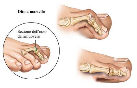 dolore al piede interno dolore alla pianta piede o sul dorso all esterno