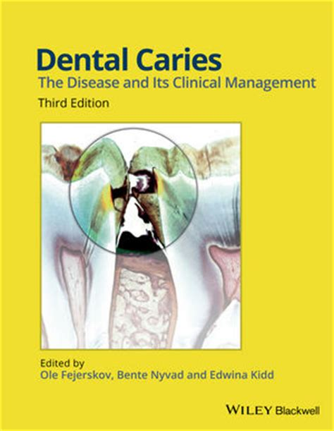Cd E Book Aesthetics Concepts Clinical Diagnosis wiley dental caries the disease and its clinical management 3rd edition ole fejerskov