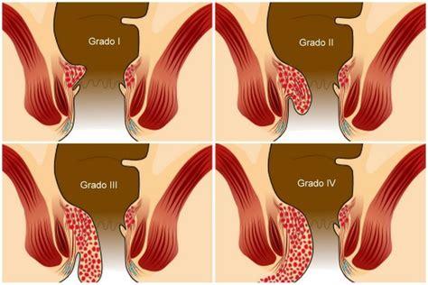 emorroidi interne emorroidi causa sintomi cura e soluzioni