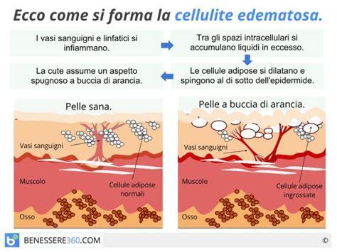 alimentazione anticellulite efficace cellulite ritenzione idrica smagliature tutte le
