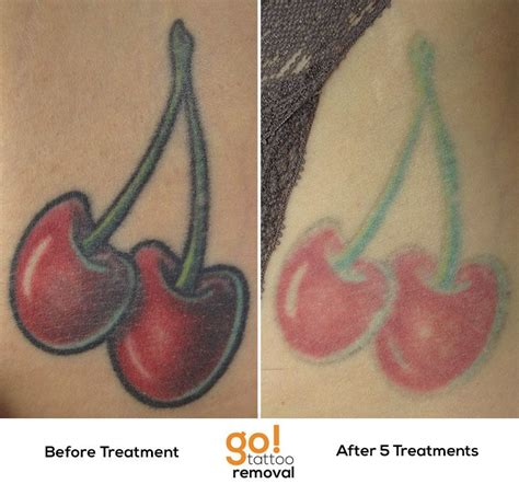 green tattoo removal passing the half way point on this removal