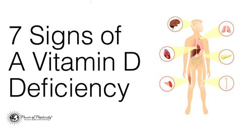 vitamin d deficiency free 1 hour vitamin d lecture image gallery lack of vitamin d3